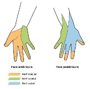 la compression du nerf ulnaire ( ou cubital) est responsable de ...